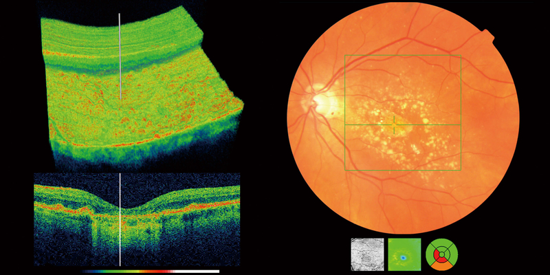 OCT scan showing the surface of the eye and the back of the eye